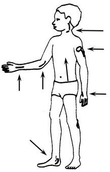 A boy with leprosy. The illustration shows where to check for thick, swollen nerves. Arrows point to the back of the neck, the wrist, the elbow, the back of the upper arm, the ankle, and behind the knee